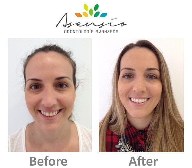 Before Amp After Dental Asensio Dental Implants Abroad In Spain