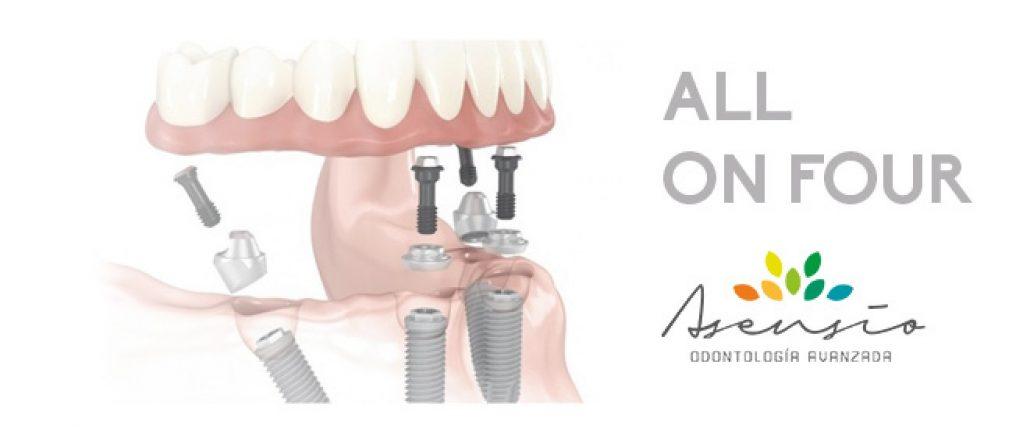 allonfour-asensio-implantes-dentales-660x275@2x