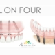 dental implants in valencia