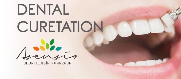 dental holidays