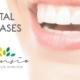 dental tourism spain