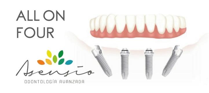 cheapest all on four dental implants
